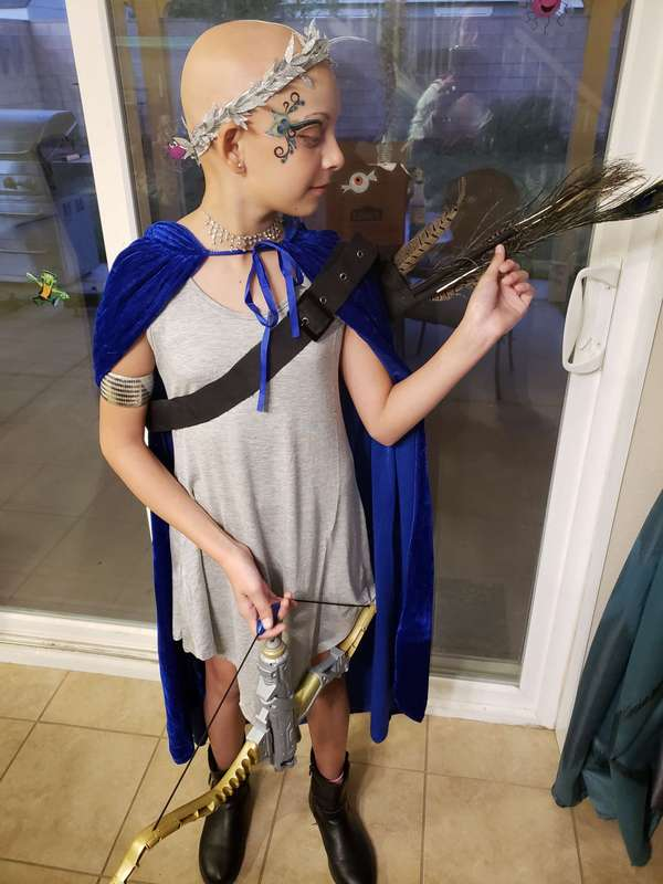 MIGHTY GIRL with Alopecia. No hair still a Goddess